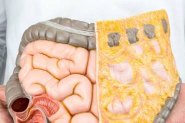 Ποιός ο ρόλος του εντέρου στην ανάπτυξη Διαβήτη τύπου 2;
